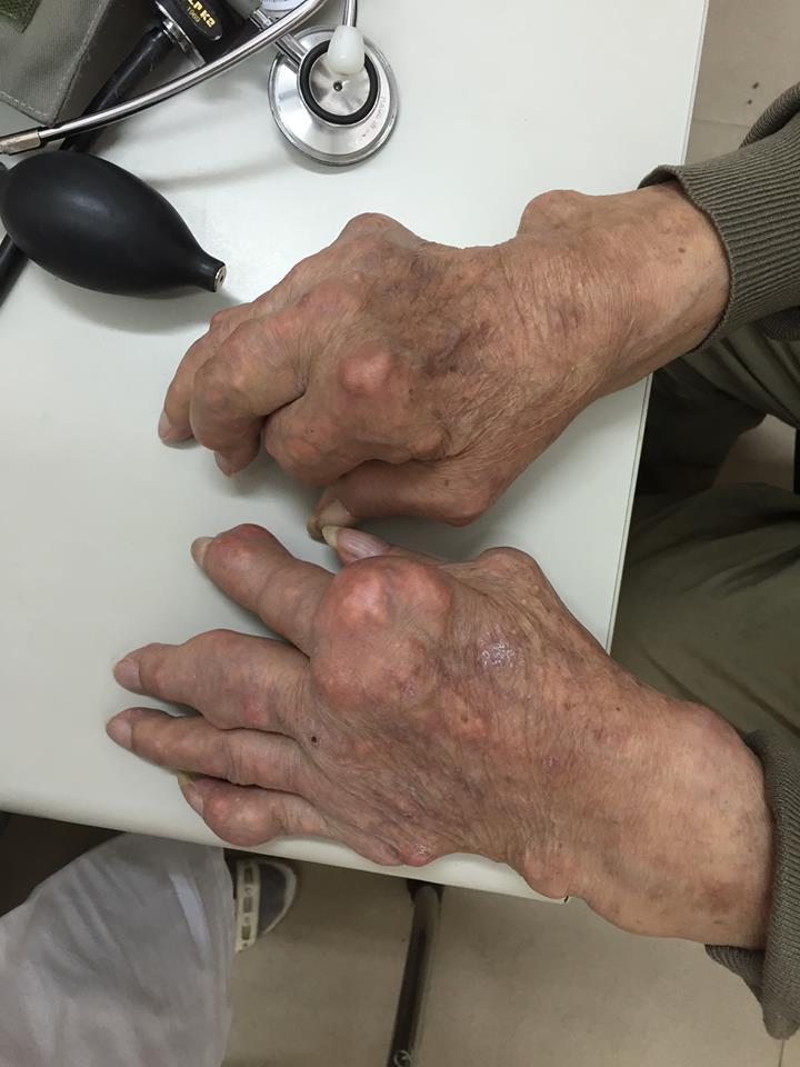 Hình ảnh này chưa có thuộc tính alt; tên tệp của nó là gout.jpg