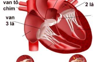 Bệnh hở van tim 1