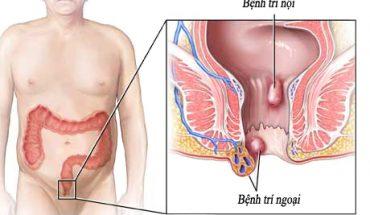 Bệnh trĩ và cách điều trị
