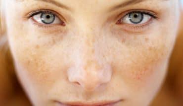 Tư vấn: Cách chữa trị nám da an toàn và hiệu quả nhất 1
